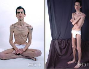 anorexia hombres TCA bulimia