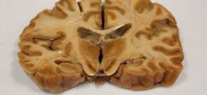 Alzheimer precoz, demencia, diagnóstico, salud, pérdida de memoria,